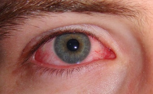 home-remedies-for-swollen-eyes