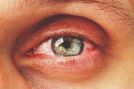 Common Eye Problems, Most Common Eye Problems And Their Treatment