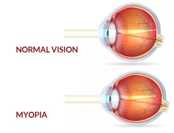 Myopia, Myopia Control And Prevention