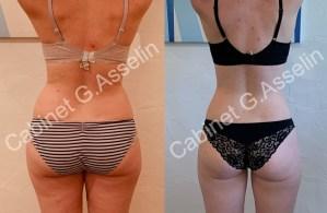 Résultat minceur luxopuncture Asselin - juillet 2020