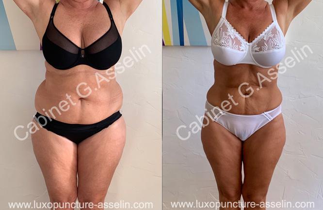Résultat minceur luxopuncture Asselin - septembre 2020