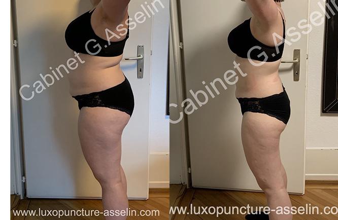Résultat minceur luxopuncture Asselin - avril 2021