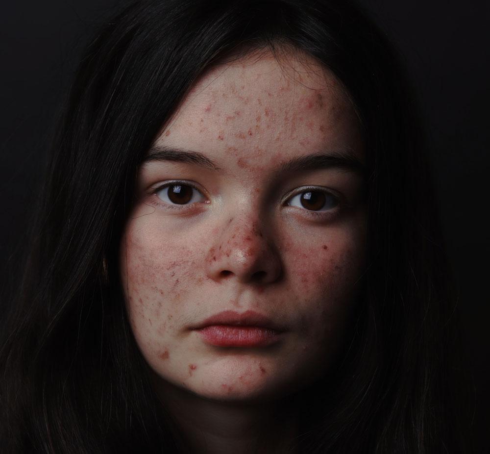 Acne-problems