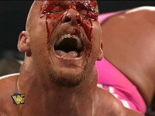 hart/austin wrestlemania 13 bloody austin