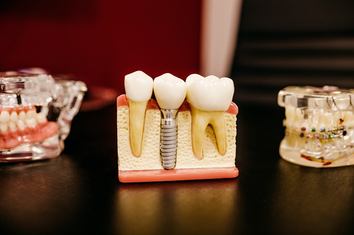 Infectolab - dental work
