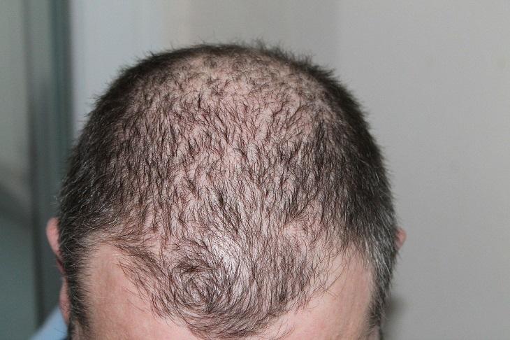 Infectolab - hair loss
