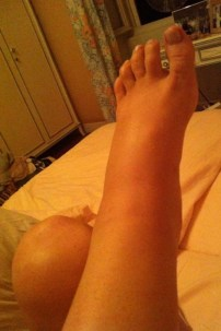 During my pregnancy, this photo shows the start of the swelling.