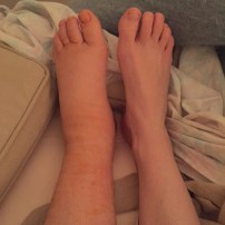 Foot and ankle is still swollen...