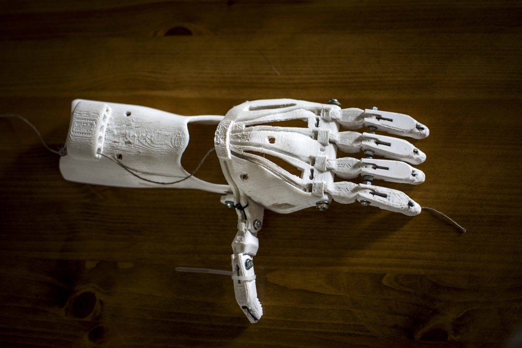 Photo of a 3-D Prosthetic hand. You don't have to wait for the year 2525 for this medical treatment.