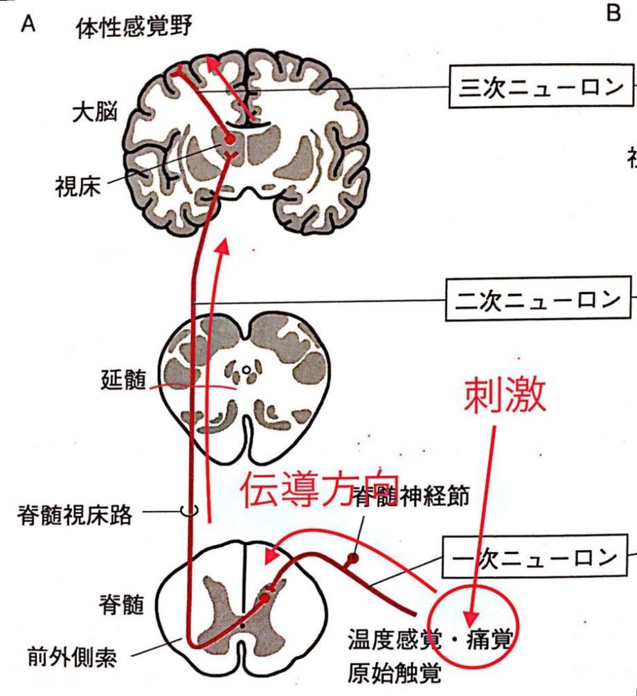 外側脊髄視床路