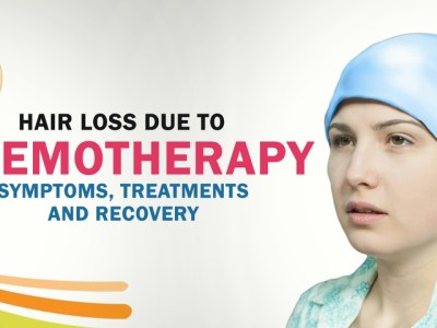 Do not postpone chemotherapy over the fear of losing hair