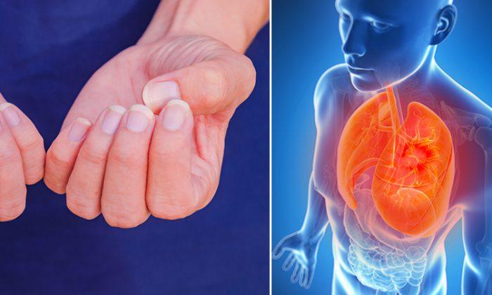 Ce que vos ongles peuvent vous dire sur votre santé, selon la médecine occidentale