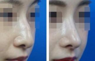 Nose hump removal