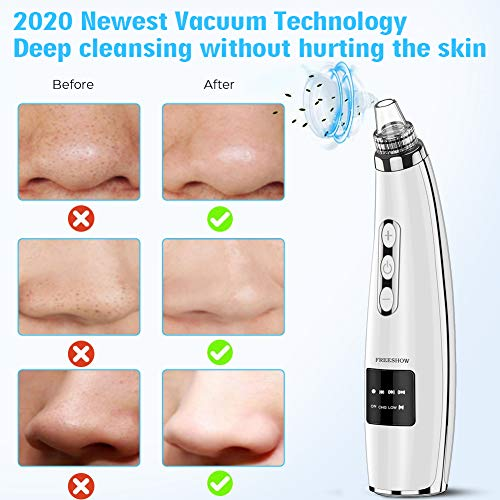 2020 Upgraded Blackhead Remover Pore Vacuum - Electric Pore Cleaner, 5 Adjustable Suction Power & 5 Replacement Probes, USB Rechargeable & LED Display, Blackhead Extractor Tool for Women and Men 4