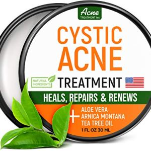 Cystic Acne Treatment and Acne Scar Remover