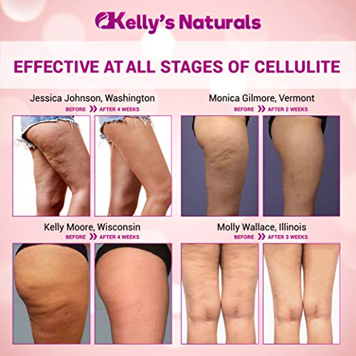 Cellulite Cream for 100% Complete Cellulite Removal - Made In USA - Hot Cream with Caffeine Cellulite Treatment - Slimming, Firming & Tightening - Works for Anti Cellulite Oil Massage & Workout Sweat 8