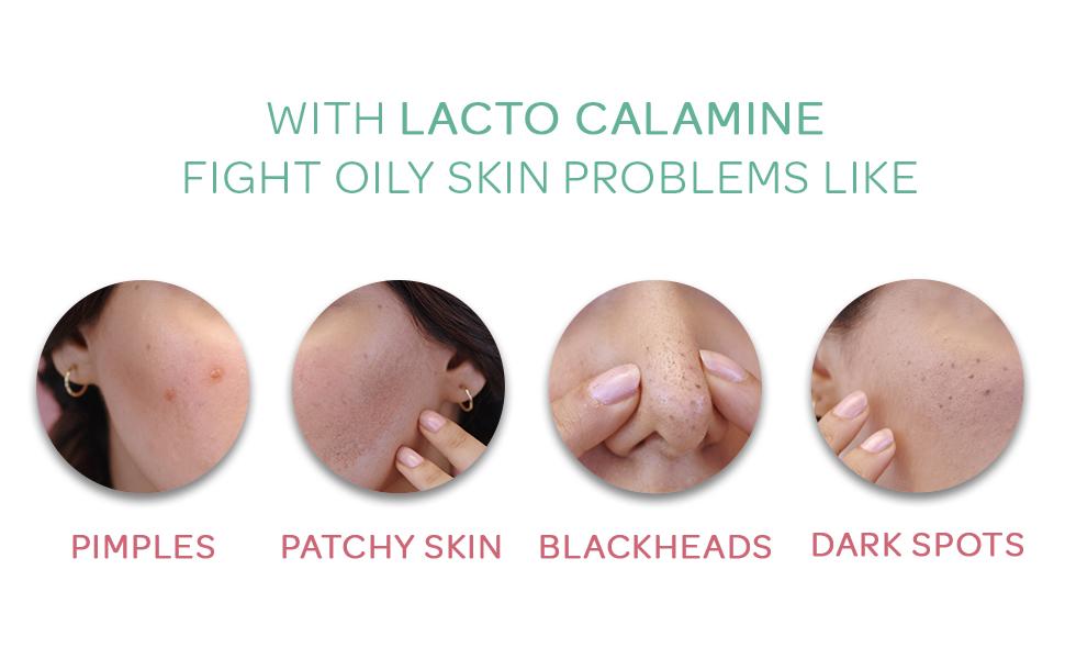 oil free skin