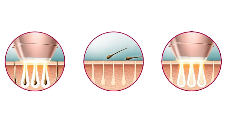 haarentfernung; ipl; laser; wachs; haarentfernungsgerät; dauerhafte; wachsstreifen; geräte