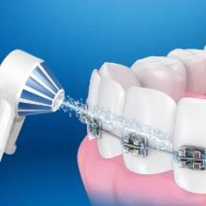 Was ist, wenn man eine Zahnspange trägt oder Implantate hat?