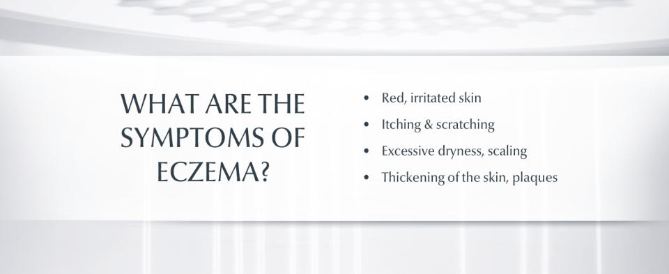 eczema treatment, eczema, eczema cream, eczema lotion, cotton gloves for eczema, eczema gloves