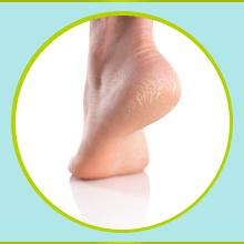 Foot Crack Cream