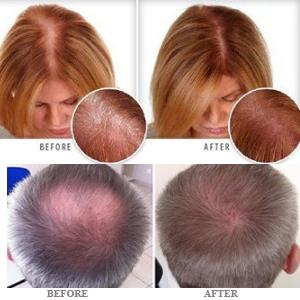 tratamento de perda de cabelo