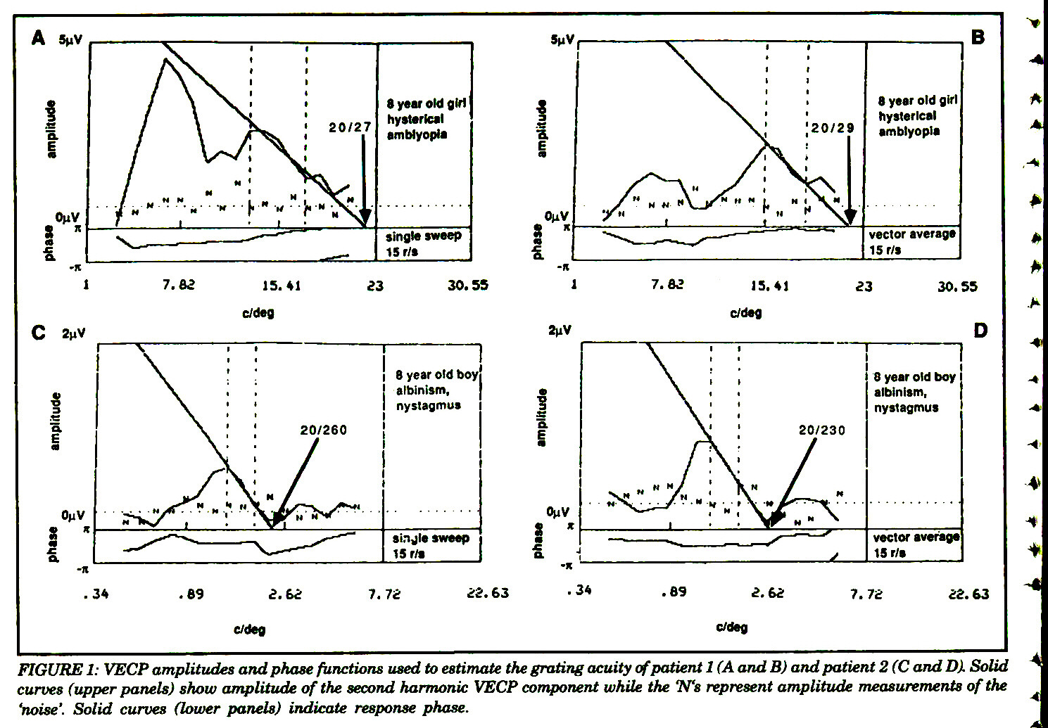 Visual Acuity Measurements By Swept Spatial Frequency Visual Evoked Cortical Potentials Vecps