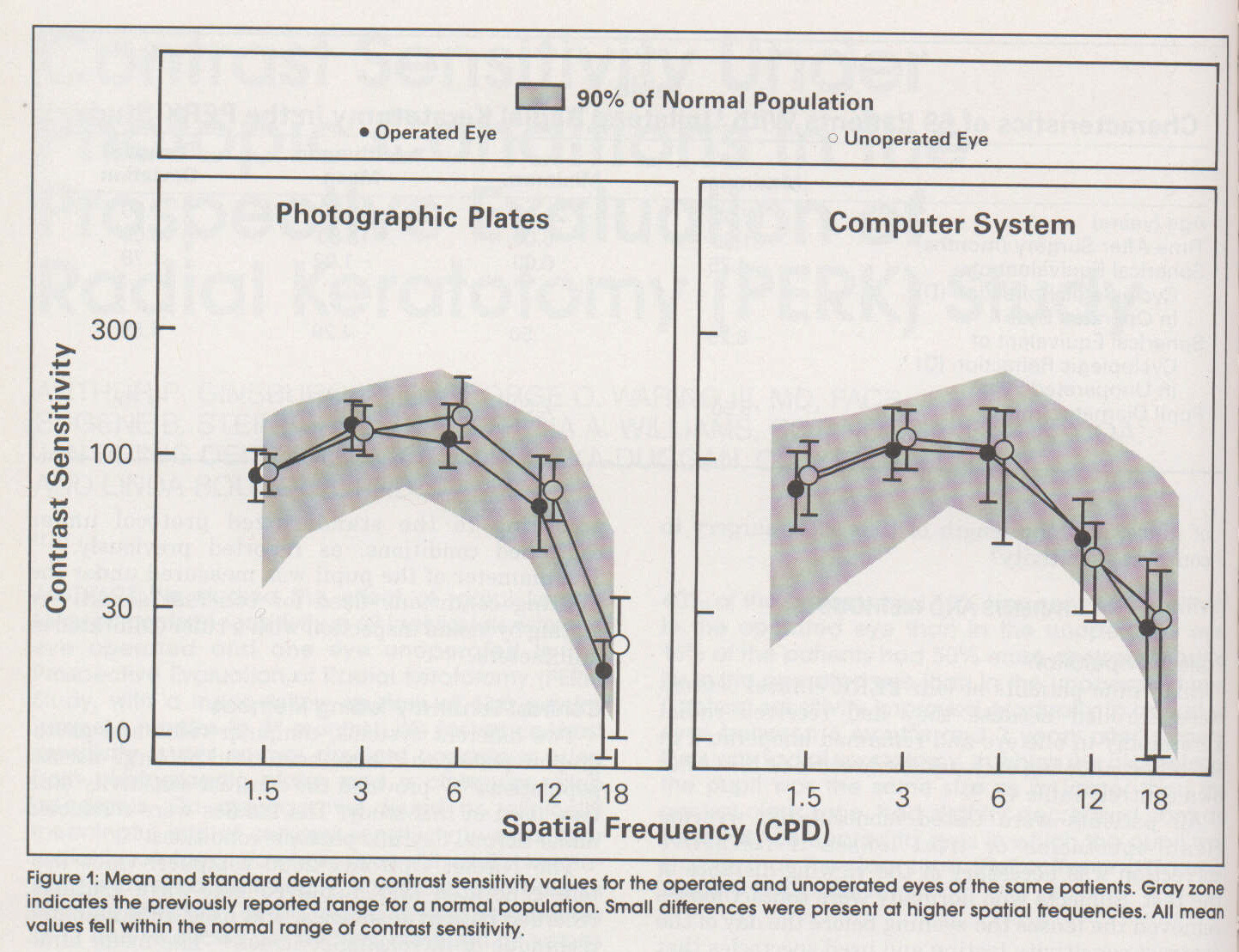 Contrast Sensitivity Under Photopic Conditions In The Prospective Evaluation Of Radial