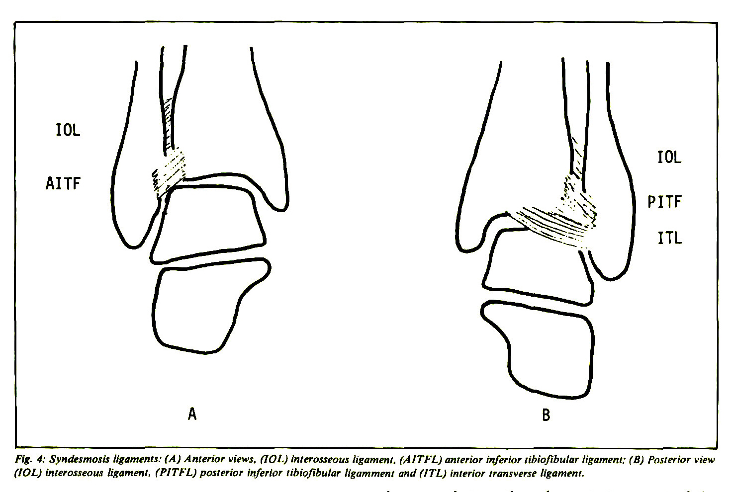 Classification And Treatment Of Ankle Fractures