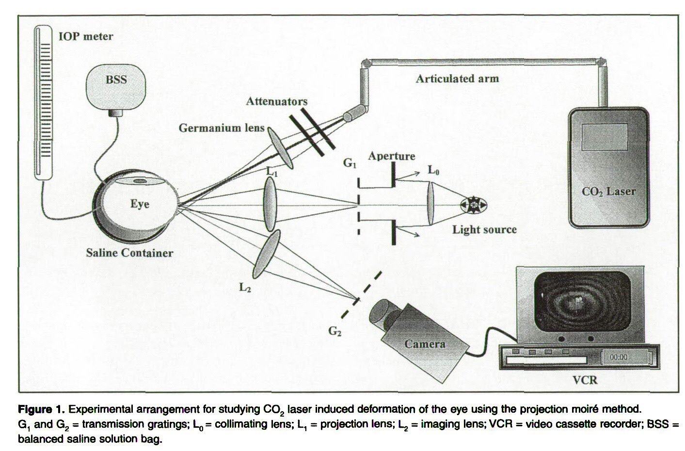 An Investigation Of Co2 Laser Scleral Buckling Using Moire