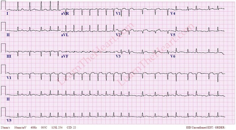 Image result for atrial fibrillation ecg