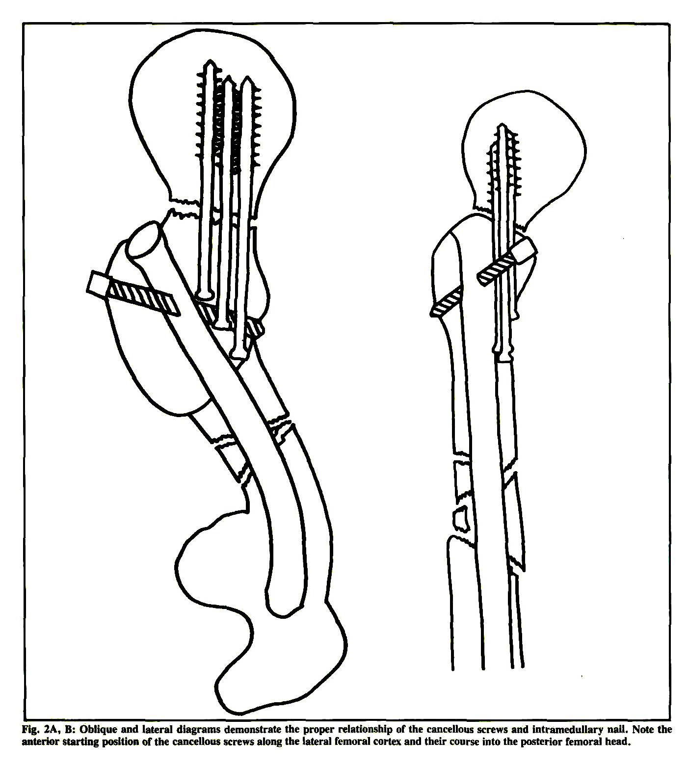 Concomitant Ipsilateral Fractures Of The Hip And Femur