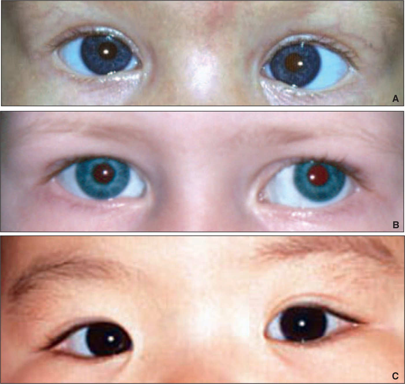 Effective Vision Screening Of Young Children In The Pediatric Office