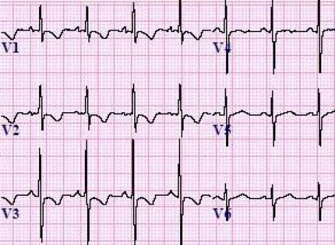 Right Ventricular Hypertrophy (RVH) ECG Review - Criteria and Examples |  LearntheHeart.com