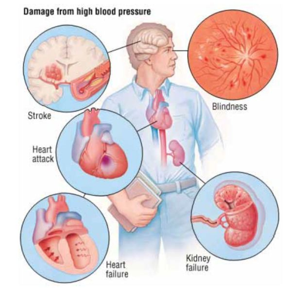 Hypertension in People with Hemophilia