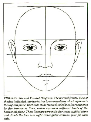Strabismus in Plagiocephaly