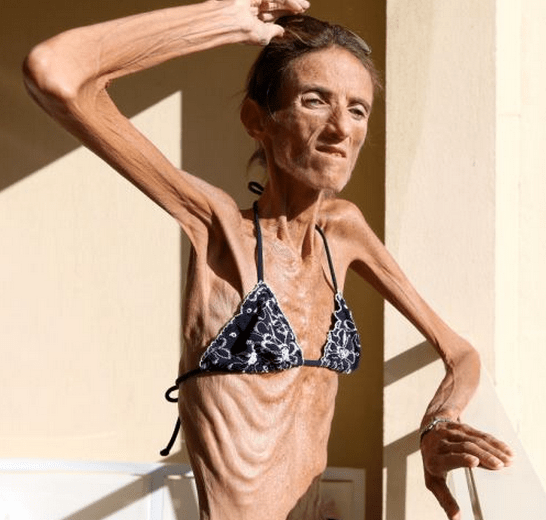 http://www.dailymail.co.uk/health/article-2250422/Frightening-words-4st-anorexic-Valeria-Levitin-gets-FAN-MAIL-shes-thin.html