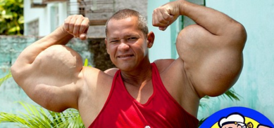 http://www.dailymail.co.uk/news/article-2577998/Real-life-Popeye-doesnt-eat-spinach-injects-potentially-lethal-cocktail-oil-ALCOHOL-grow-monster-arms.html