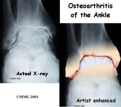 ankle_osteoarthritis_diagnosis01