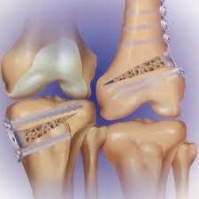 osteotomia 1