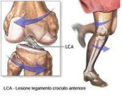 trauma distorsivo1 ginocchio