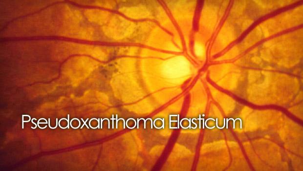 Pseudoxanthoma Elasticum (PXE) and the retina