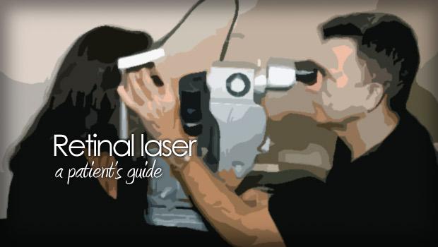 Laser retinal photocoagulation
