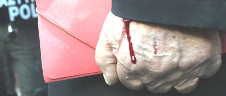 hand-met-bloed