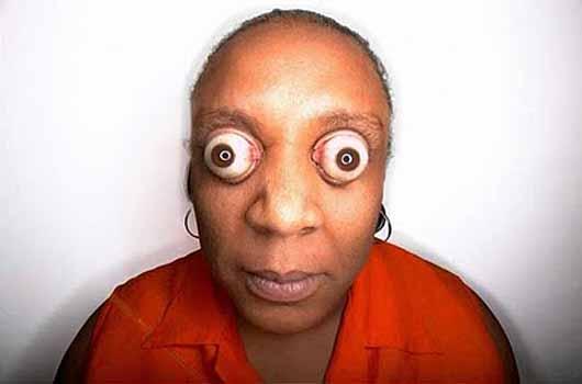 Eyeball weird 102311