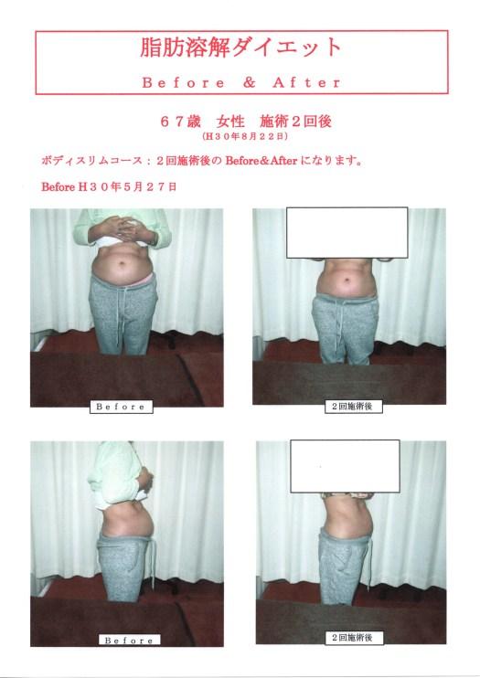 """高知で人気 脂肪溶解ダイエット2回施術後"""""""""""