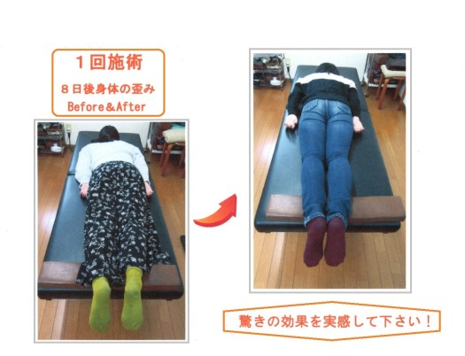 高知の整体院!!首肩こりや腰痛、骨盤矯正にお勧め