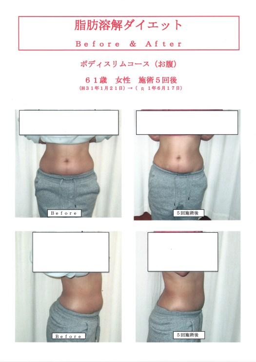 脂肪溶解ダイエット61歳女性5回施術
