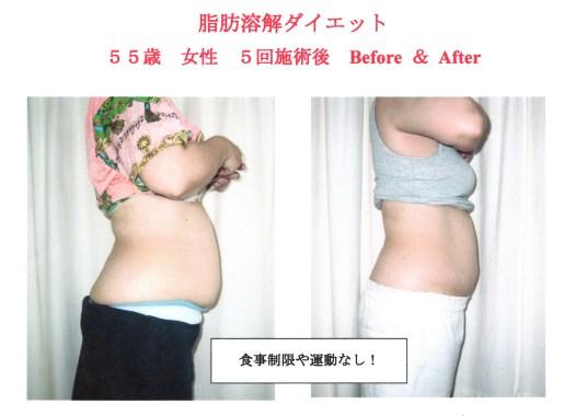 脂肪溶解ダイエットのメリット