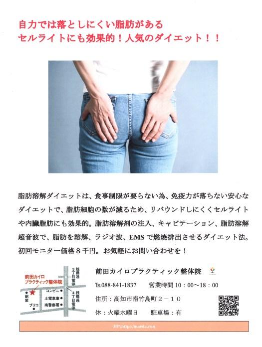 脂肪溶解ダイエット(EMS)
